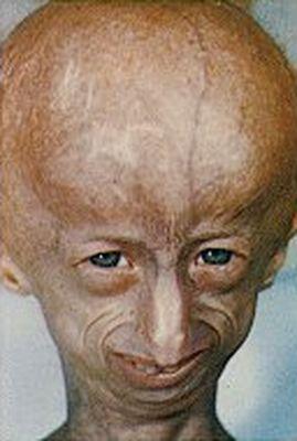 2. Progeria