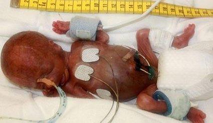 Urodzony w 25 tygodniu ciąży wcześniak przeżył, choć nikt ...