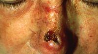 Wirus brodawczaka związany z rakiem skóry