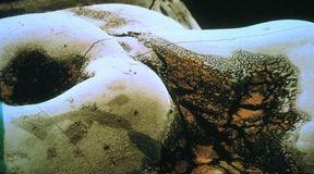 Choroby pod lupą: Próchnica