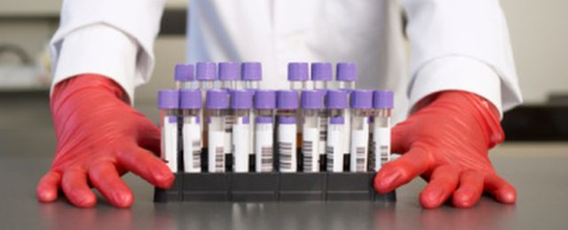 Co oznacza grupa krwi?