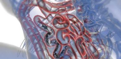 Bakterie zamiast diety?