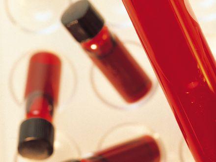 Czy warto przechowywa� krew p�powinow�?