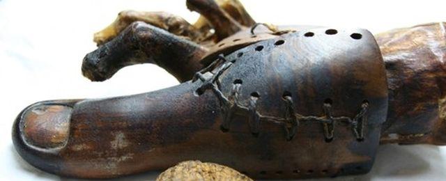 Staro�ytna proteza