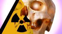Jak zabija promieniowanie?
