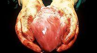 Ludzie, którzy żyli bez serca