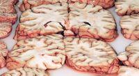 Sekret mózgu Einsteina ujawniony?