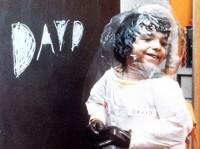 Nazywali go chłopcem z plastikowej bańki! Jego historia poruszyła cały świat