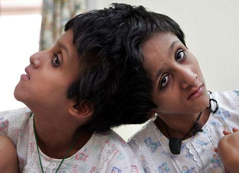 Najsłynniejsze bliźnięta syjamskie