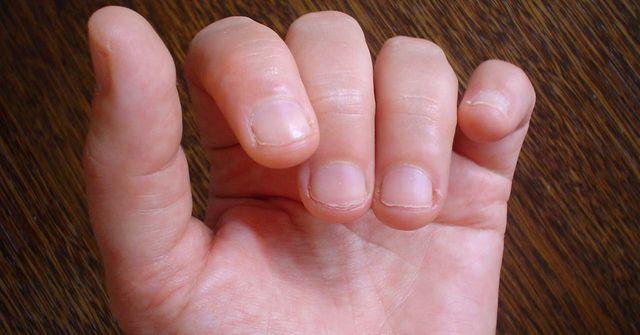 Obgryzanie paznokci to choroba