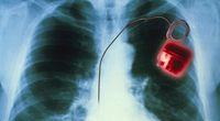 Wirus, który naprawia serce