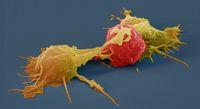 Nowy sposób leczenia raka