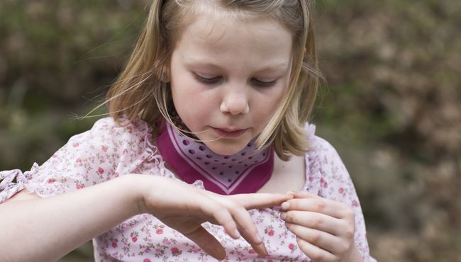 Zastrza� i zanokcica u dzieci
