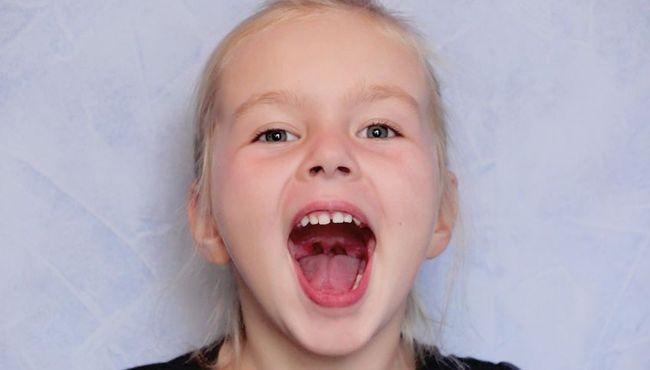 Brzydki zapach z ust - co oznacza u dziecka?