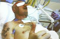 Pacjent po przeszczepie twarzy wychodzi ze szpitala