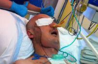 Pacjent po przeszczepie twarzy opuszcza szpital w Gliwicach