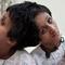 Matka prosi o eutanazj� bli�niaczek syjamskich