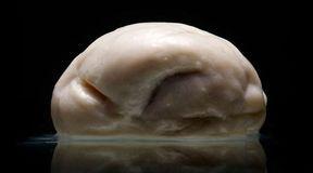 Niezwykła kolekcja ludzkich mózgów