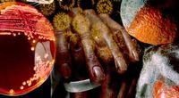 Epidemia dżumy na Madagaskarze