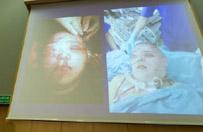 Resort zdrowia nie planuje zmian w finansowaniu przeszczep�w twarzy