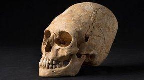 Zdeformowana czaszka z Alzacji