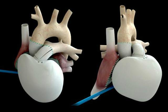 Pierwsze wszczepione na sta�e sztuczne serce bije ju� w ludzkiej piersi