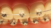 Aparaty ortodontyczne tak modne, �e a� podrabiane