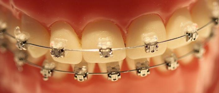 Aparaty ortodontyczne tak modne, że aż podrabiane