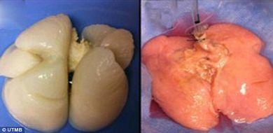 Naukowcy wyhodowali ludzkie płuca