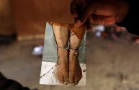 Konwencja o zakazie tortur ma 30 lat