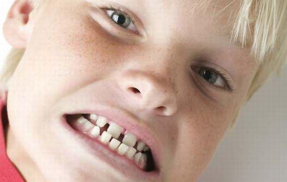 С чем связан скрежет зубами