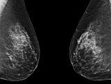 Obustronna mastektomia nie zwi�ksza szans prze�ycia