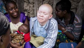 Albinosi - białe ofiary czarnej magii