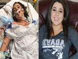 Jedna impreza zmieni�a jej �ycie. Lekarze nie dawali jej szans na prze�ycie
