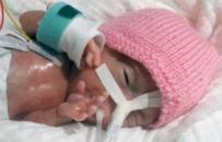 Emilia Grabarczyk to najmniejsze dziecko na świecie! Lekarze nie dawali jej szans na przeżycie