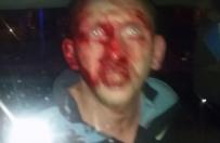 Policjanci w cywilu pobili m�czyzn� w S�upsku. Uwaga: drastyczne sceny