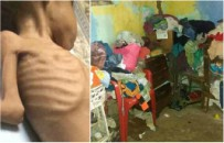 Przera�aj�ca fala g�odu w Wenezueli. Gwa�towny wzrost liczby przypadk�w niedo�ywienia w�r�d dzieci