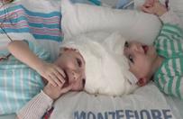 Po 27-godzinnej operacji rozdzielono bli�ni�ta syjamskie