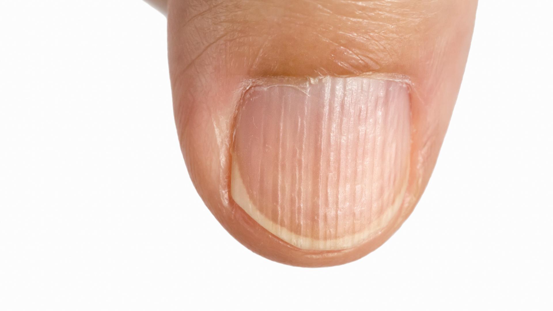 O czym świadczą pionowe bruzdy na paznokciach?
