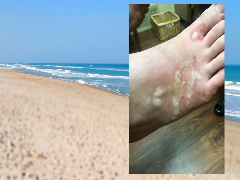 Zaraził się pasożytami na plaży
