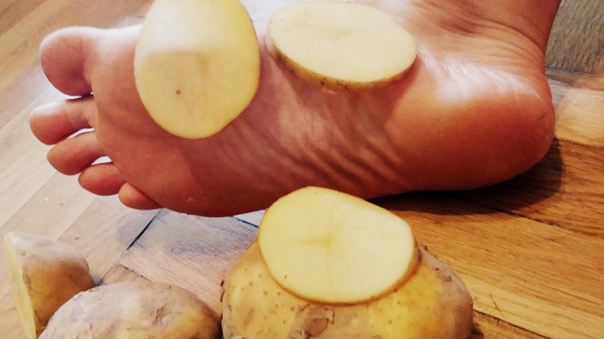 Ziemniaki mogą przeciwdziałać potliwości stóp
