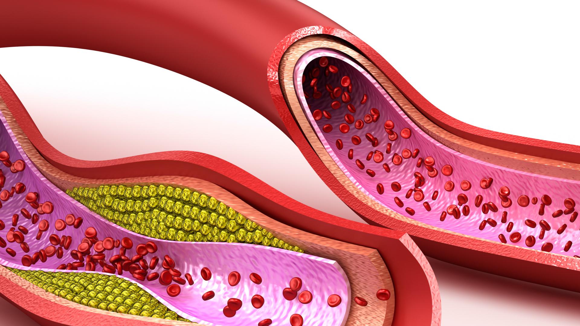 Produkty, które czyszczą tętnice ze złogów cholesterolu