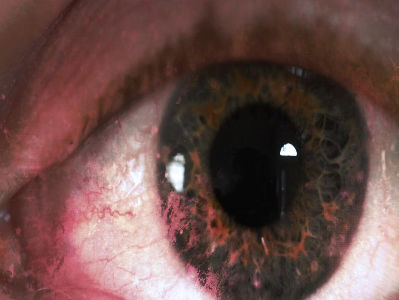 Objawy nowotworu oka