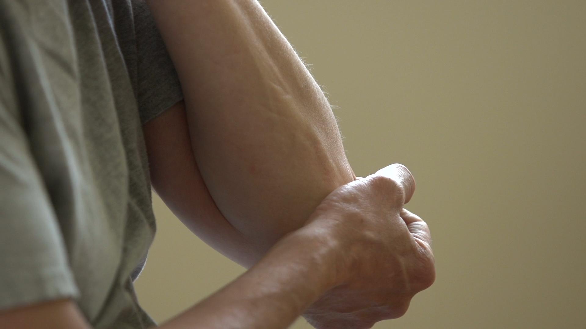 Wczesne objawy reumatoidalnego zapalenia stawów