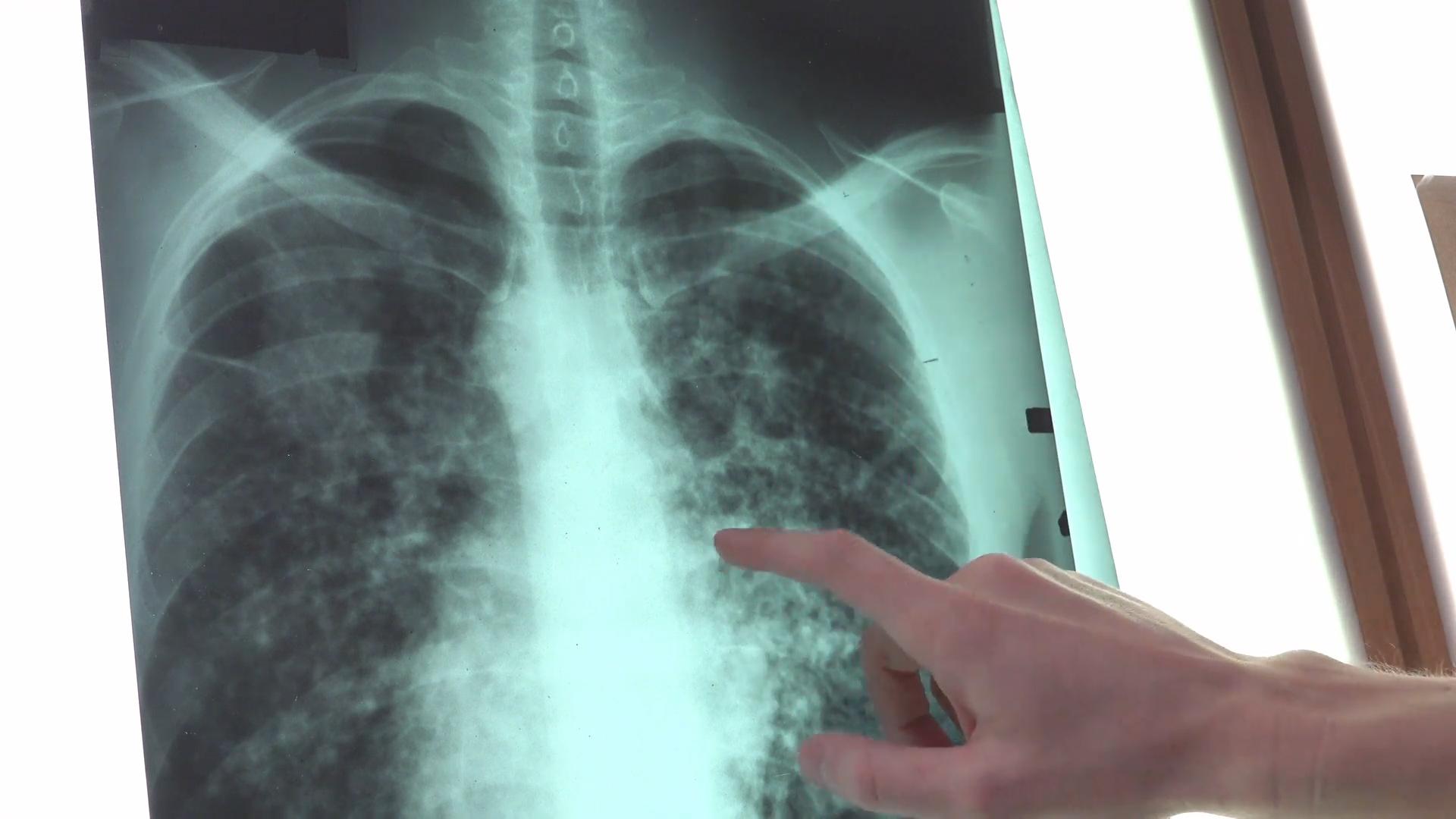 Rak płuc - zabójca numer 1